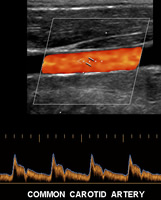 US vasc carotid colour dopp.jpg